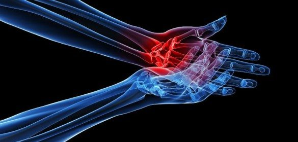 Exercise is the Best Treatment for Osteoarthritis