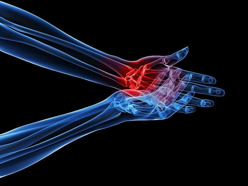 inflamed hand with arthritis