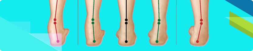Different ankle gait styles