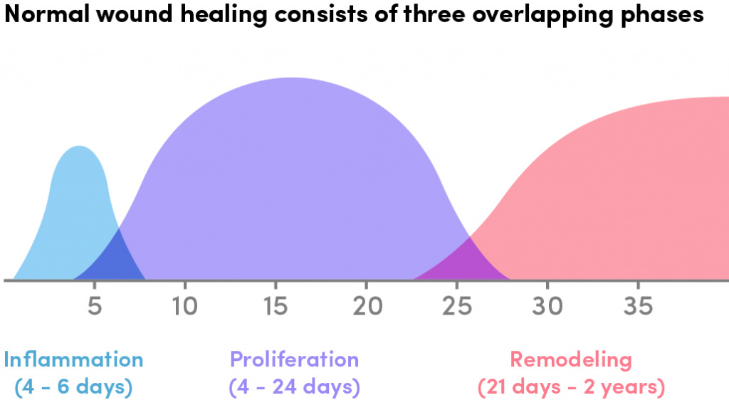 The Specifics of Inflammation | HFE Blog
