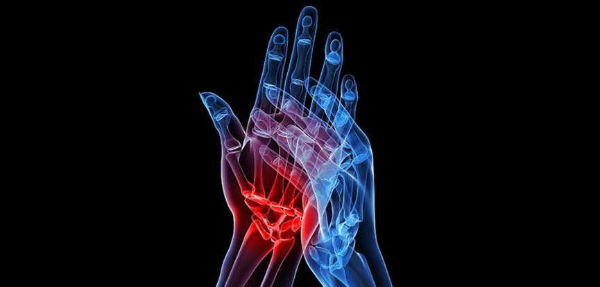 Inflammation of the wrist