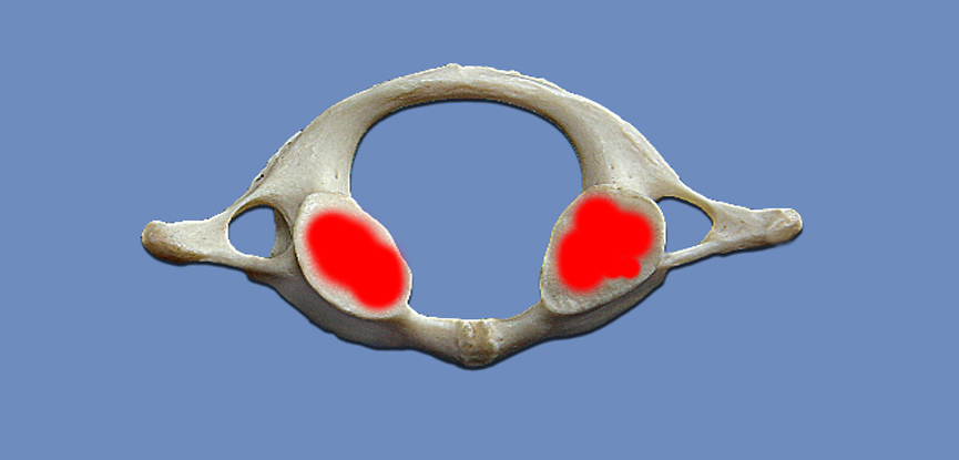 A photography of the first cervical vertebra