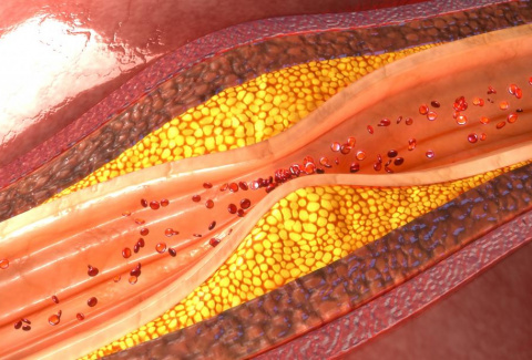 An Introduction to Atherosclerosis